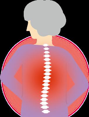 骨粗鬆症の治療