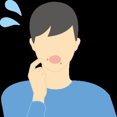 帯状疱疹(ヘルペス)