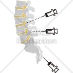 神経ブロックによる痛みの治療
